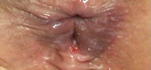 Fisura Anal - Sntomas, Causas, Imgenes, Tratamiento